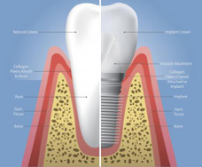 Natural vs. Implant Crown